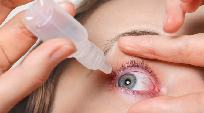 """What is Post-LASIK """"Dry Eye"""" and How Can I Prevent It?"""