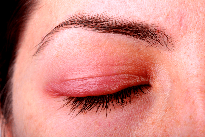 Is it Just a Common Eye Allergy, or is it Ocular Rosacea?