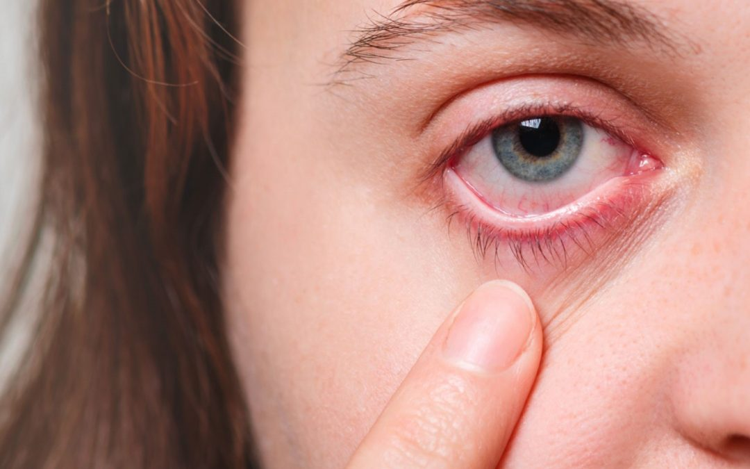 Is It Just A Common Eye Allergy or Is It Ocular Rosacea?