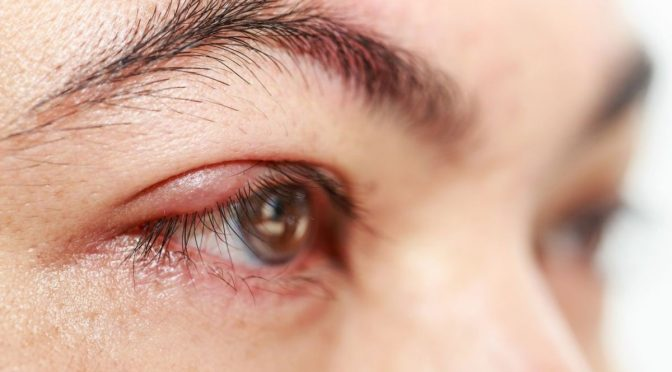 Are Your Eyelashes Infested With Mites? Stop Scratching For A Minute To Find Out!